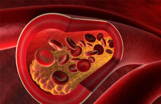 dieta colesterol alto barcelona