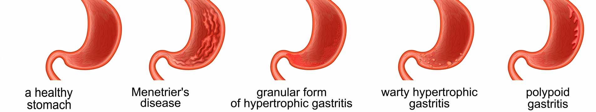 dieta gastritis