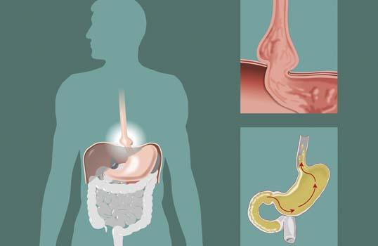 Dieta para la hernia de hiato 100% personalizada